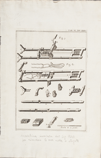 Engraving of medical instruments, likely to replace broken bones, by Carlo Cesi, 1626-1686. From the Osler Library Prints Collection, OPF000047.