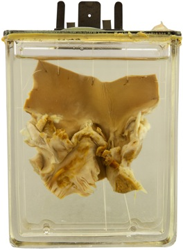 Osler specimen 23. Acute infectious endocarditis. Maude Abbott Medical Museum.