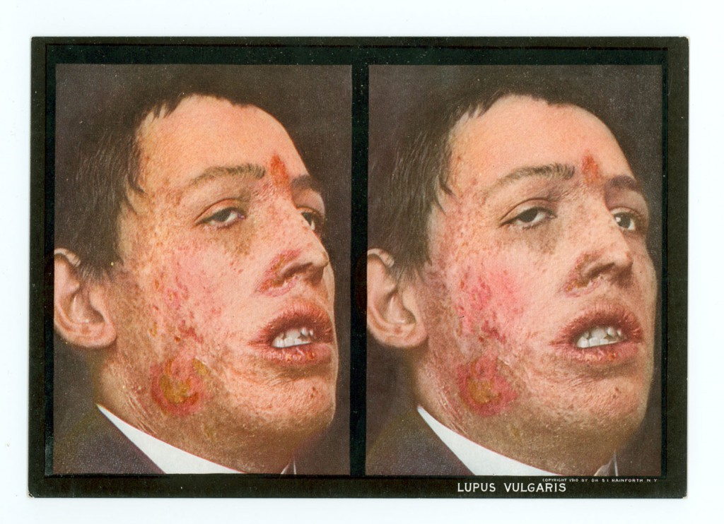S. I. Rainforth. The stereoscopic skin clinic; an atlas of diseases of the skin, consisting of colored stereoscopic illustrations and a text in the form of clinical lectures, designed for the use of practitioners and students of medicine. New York: Medical Art Pub. Co., 1914.