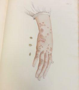 """Pl. 55 """"Gale légitime, ou vésiculeuse"""", Scabies, 1833."""